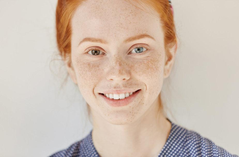"""Read more about the article """"Bjauriųjų ančiukų"""" triumfas: unikalia išvaizda pasaulį sužavėję albinosai ir """"plius dydžio"""" modeliai"""